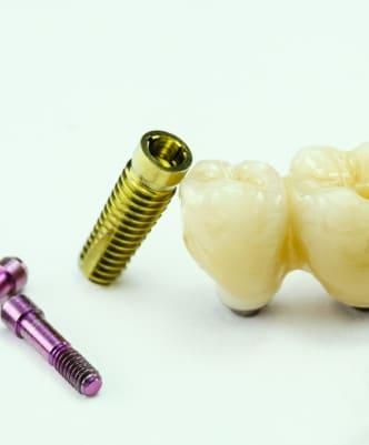 Implanty zębowe – zaawansowana implantologia