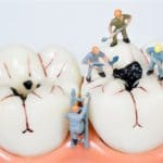 miniature people clean tooth model,medical concept